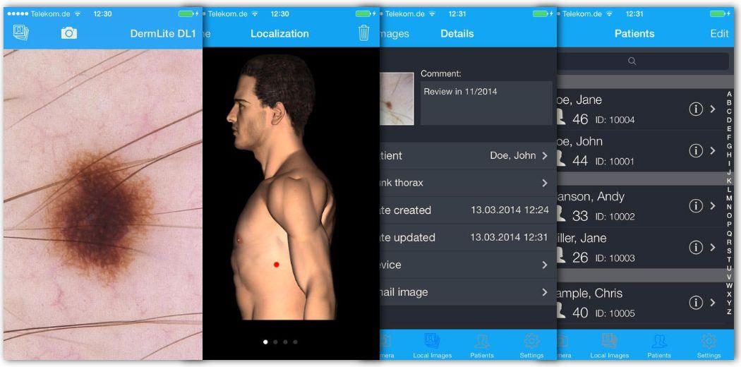DermLite HUD: Smart Skin Scanner + App for Cancer Detection (via @iphoneness)